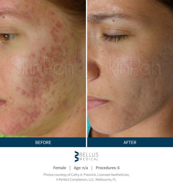 Microneedling Denver Acne Scars Before & After