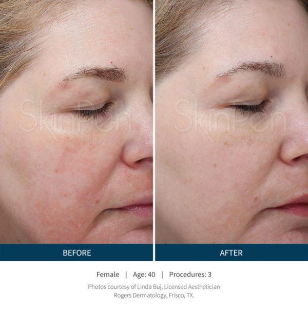 SkinPen Microneedling Denver Acne Female