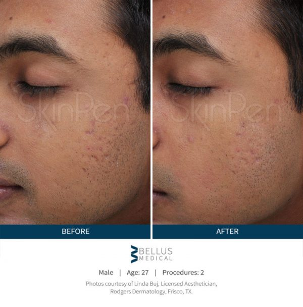 SkinPen Microneedling Male Before & After
